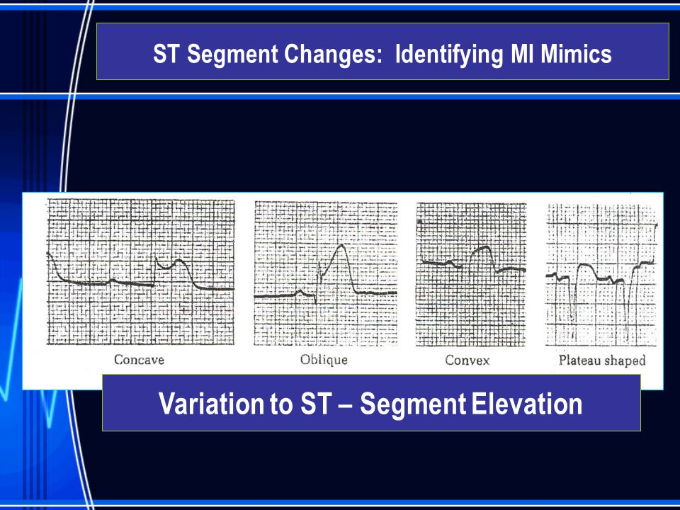 Variation to ST – Segment Elevation