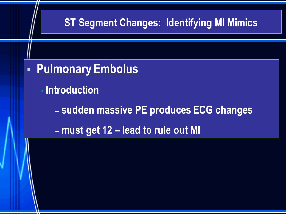 ST Segment Changes: Identifying MI Mimics