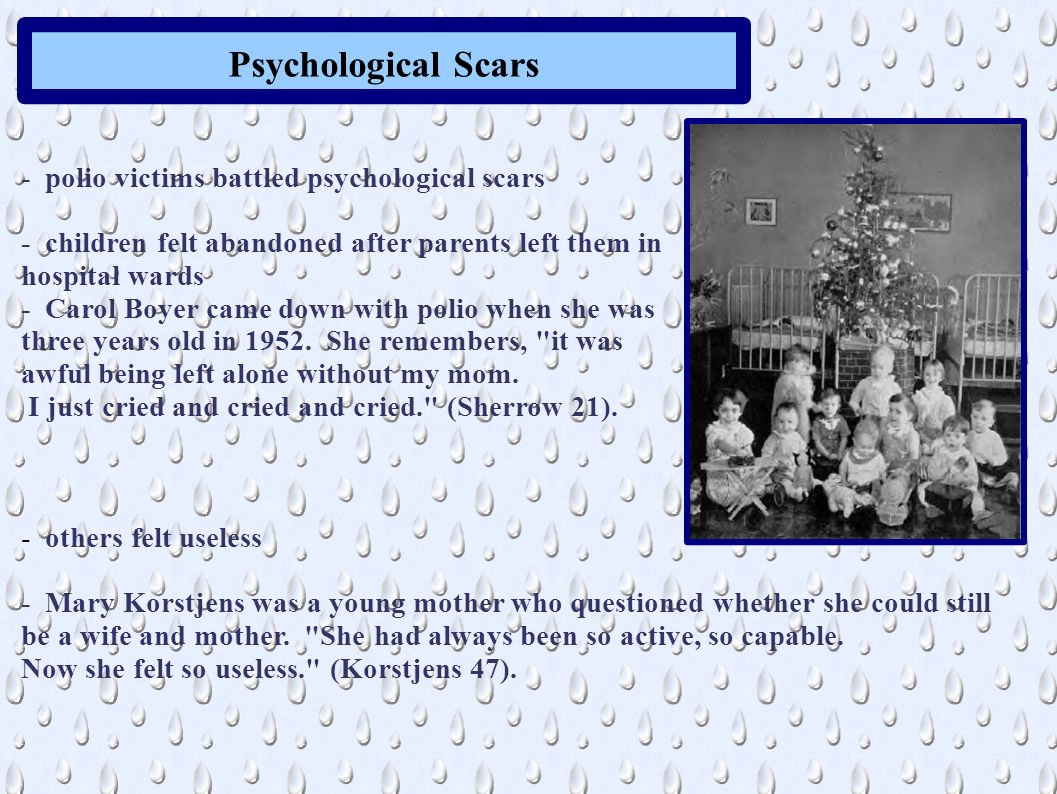 Psychological Scars - polio victims battled psychological scars