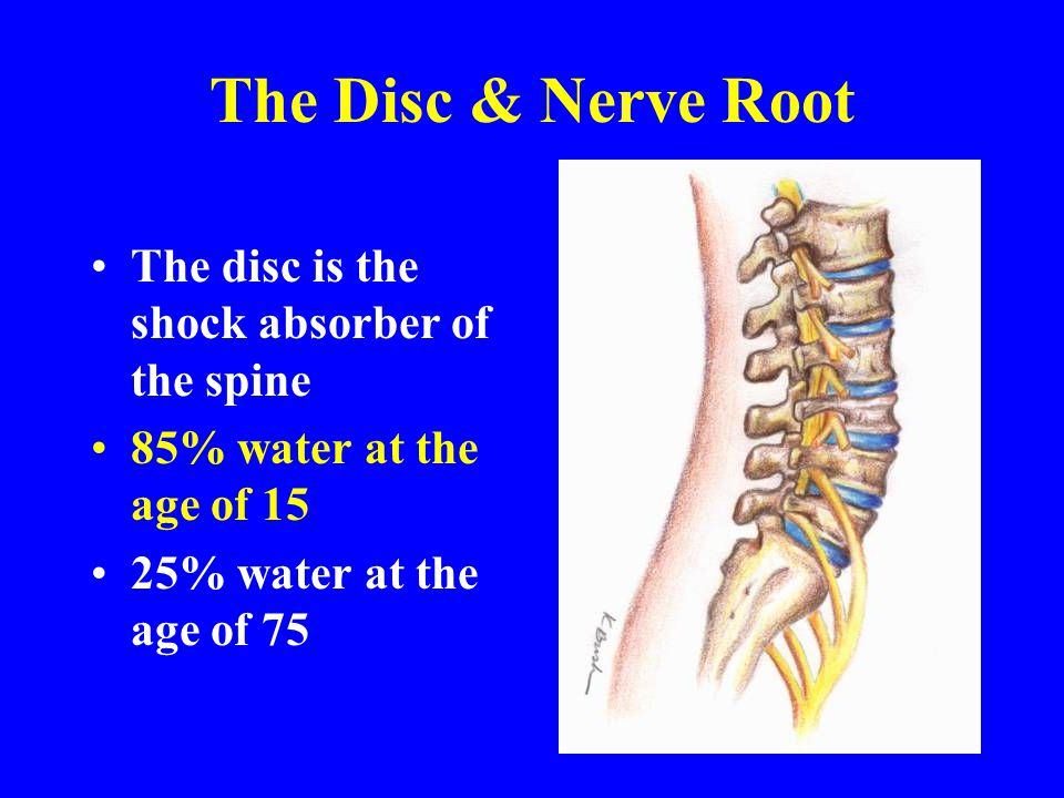 The Disc & Nerve Root The disc is the shock absorber of the spine