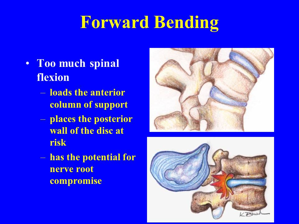 Forward Bending Too much spinal flexion