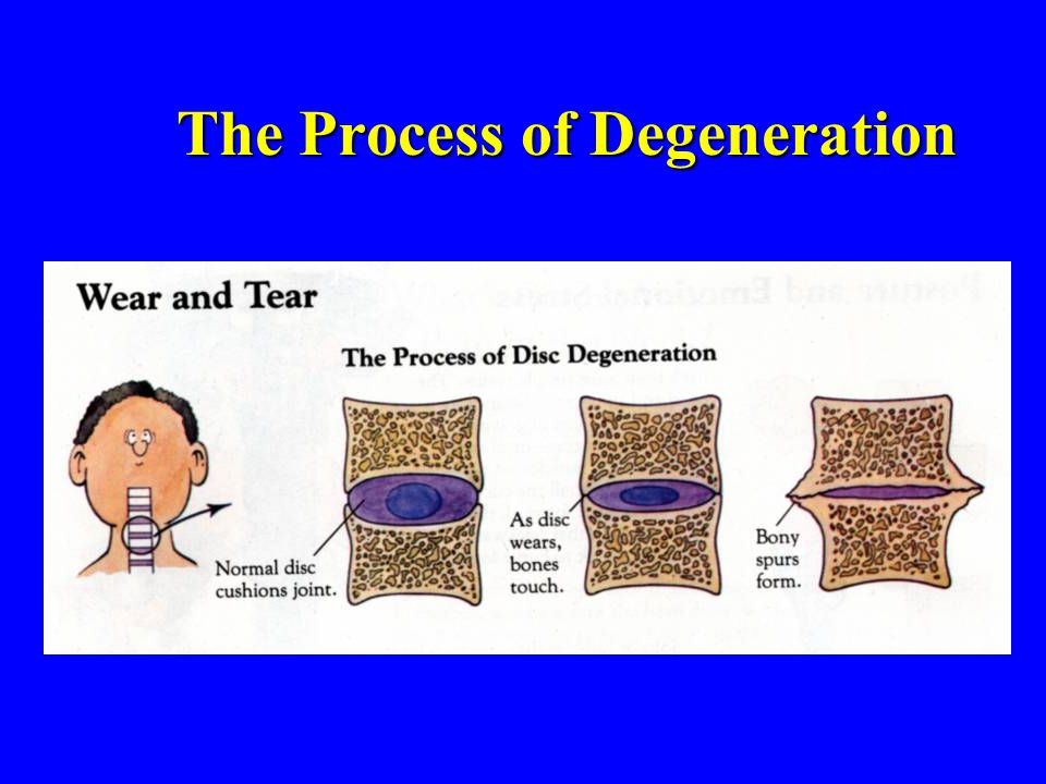 The Process of Degeneration