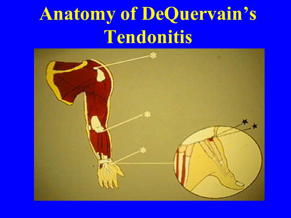 Anatomy of DeQuervain's Tendonitis