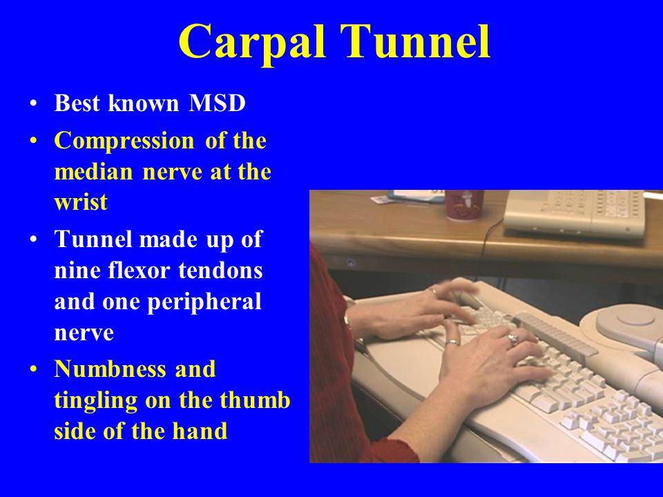 Carpal Tunnel Best known MSD