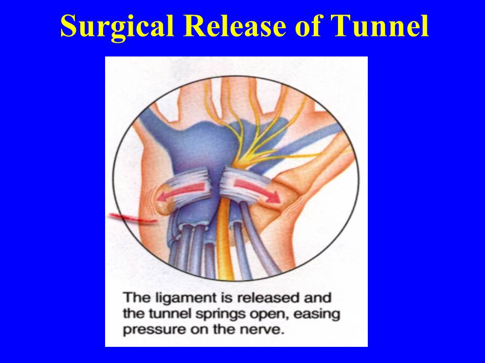 Surgical Release of Tunnel