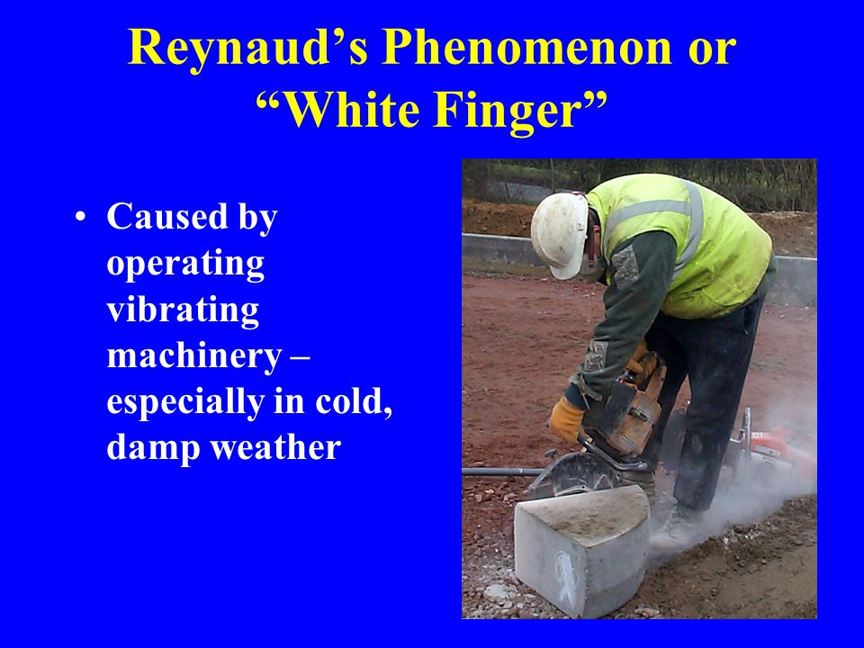 Reynaud's Phenomenon or White Finger