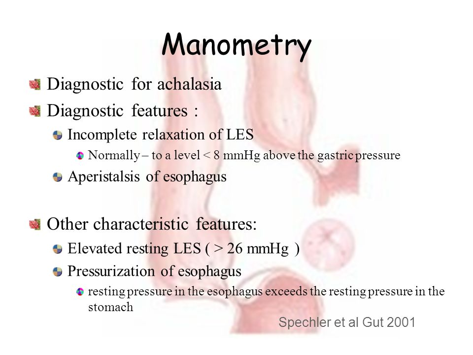 Manometry Diagnostic for achalasia Diagnostic features :