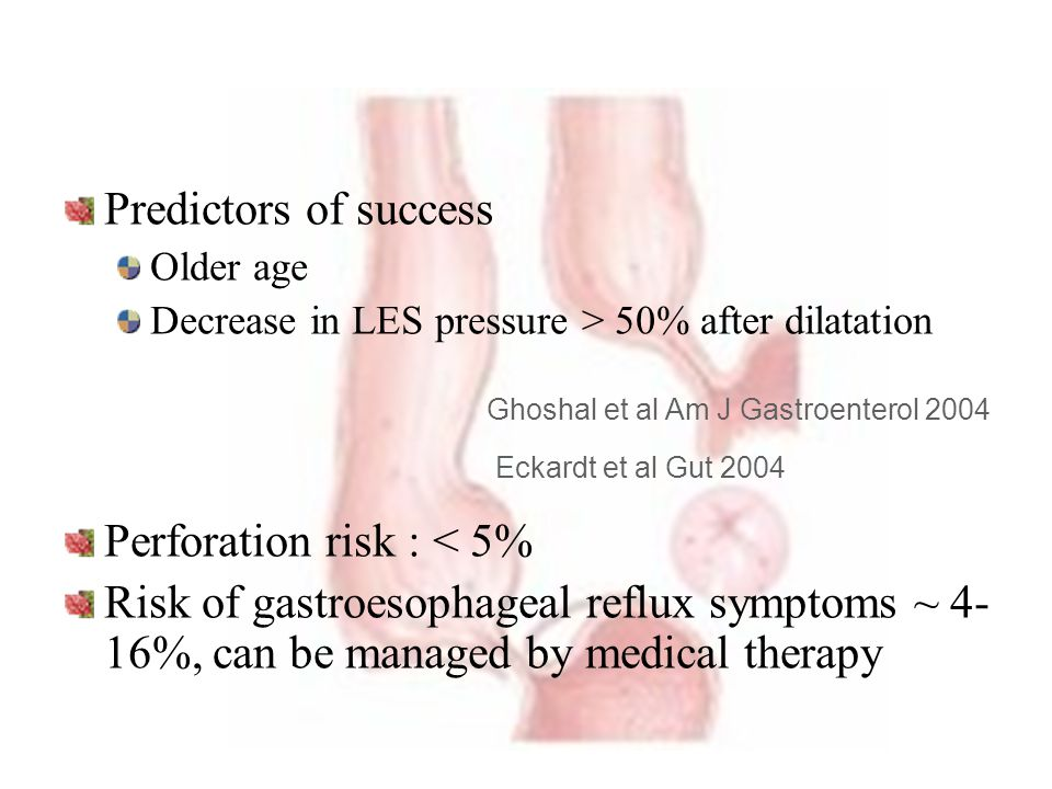 Perforation risk : < 5%