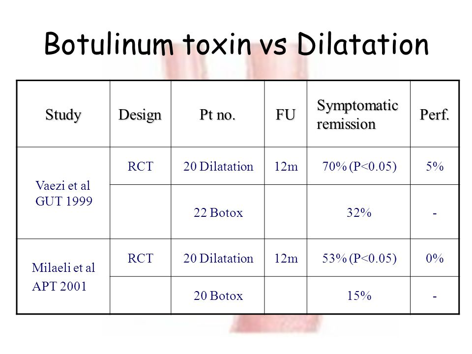 Botulinum toxin vs Dilatation