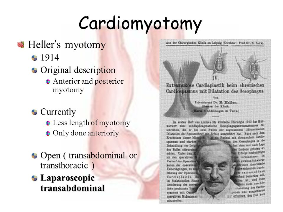 Cardiomyotomy Heller's myotomy 1914 Original description Currently