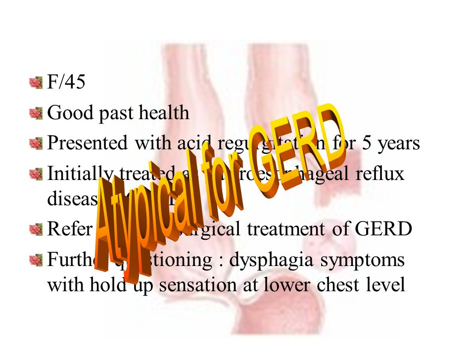Atypical for GERD F/45 Good past health