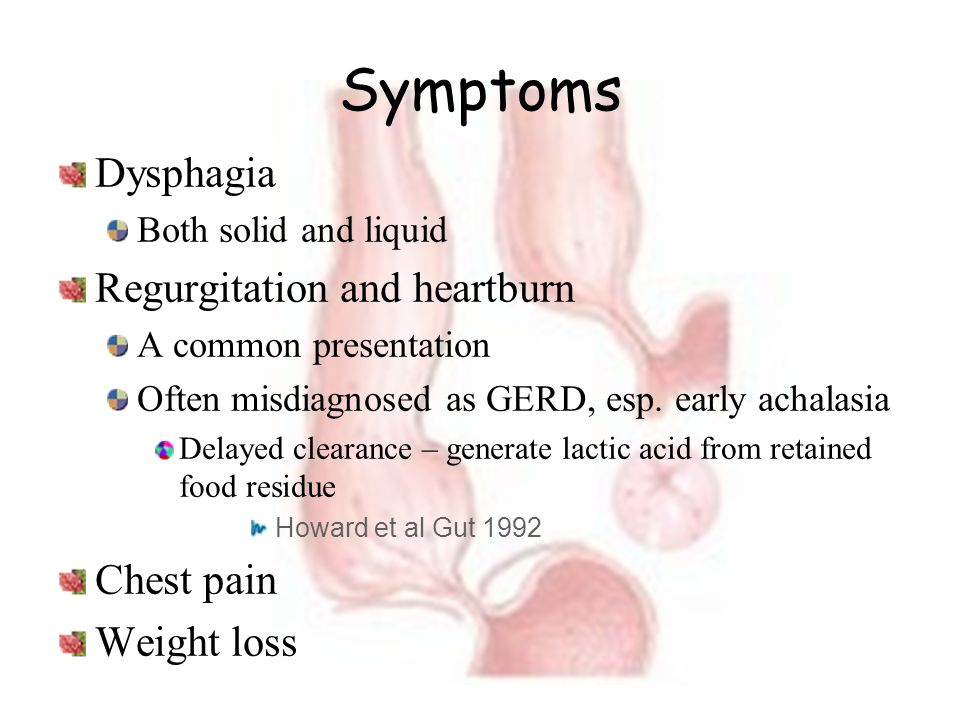 Symptoms Dysphagia Regurgitation and heartburn Chest pain Weight loss