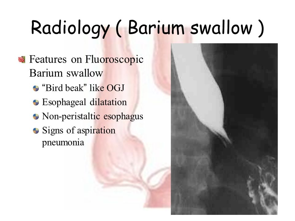 Radiology ( Barium swallow )
