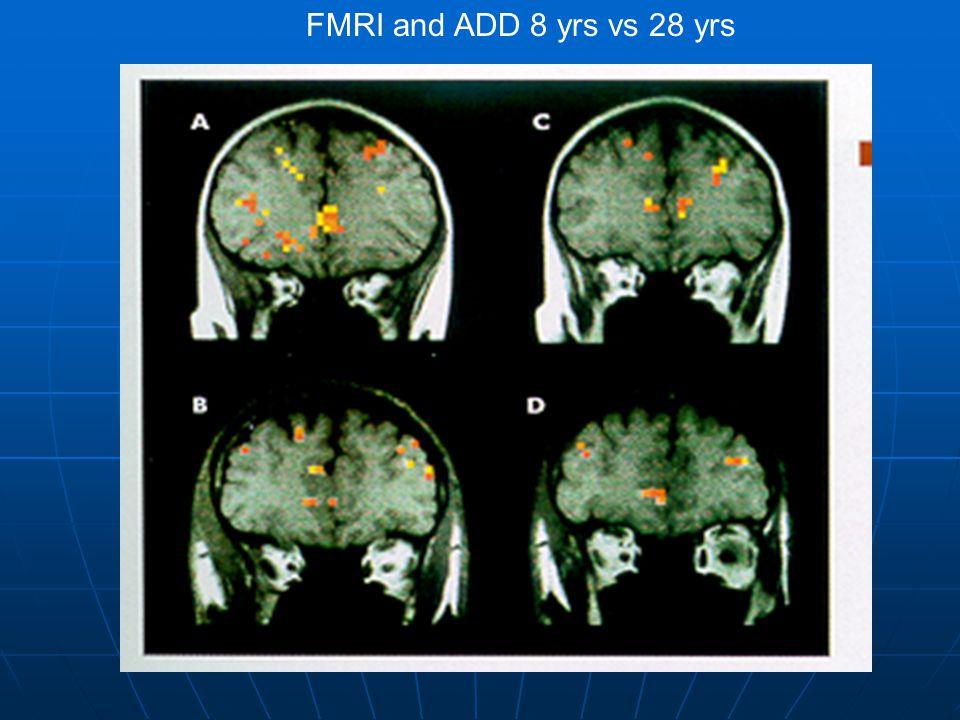 FMRI and ADD 8 yrs vs 28 yrs
