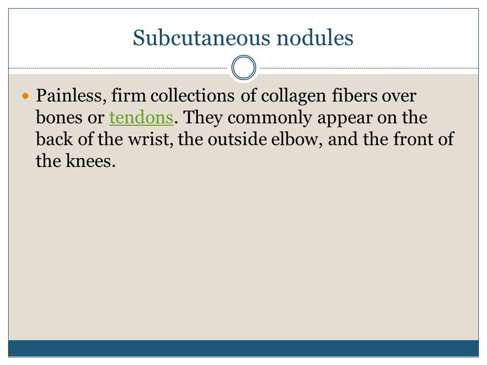 Subcutaneous nodules