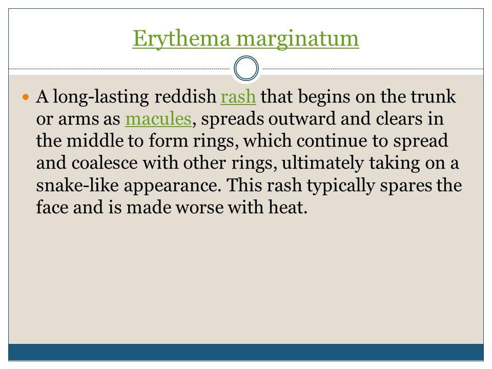 Erythema marginatum