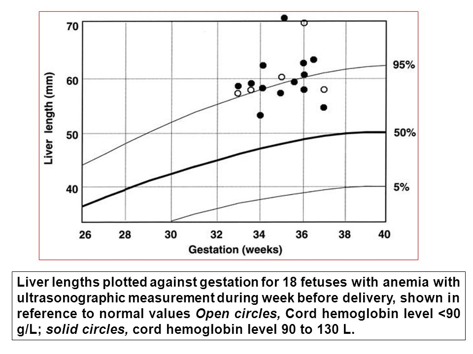 Liver lengths plotted against gestation for 18 fetuses with anemia with ultrasonographic measurement during week before delivery, shown in reference to normal values Open circles, Cord hemoglobin level <90 g/L; solid circles, cord hemoglobin level 90 to 130 L.