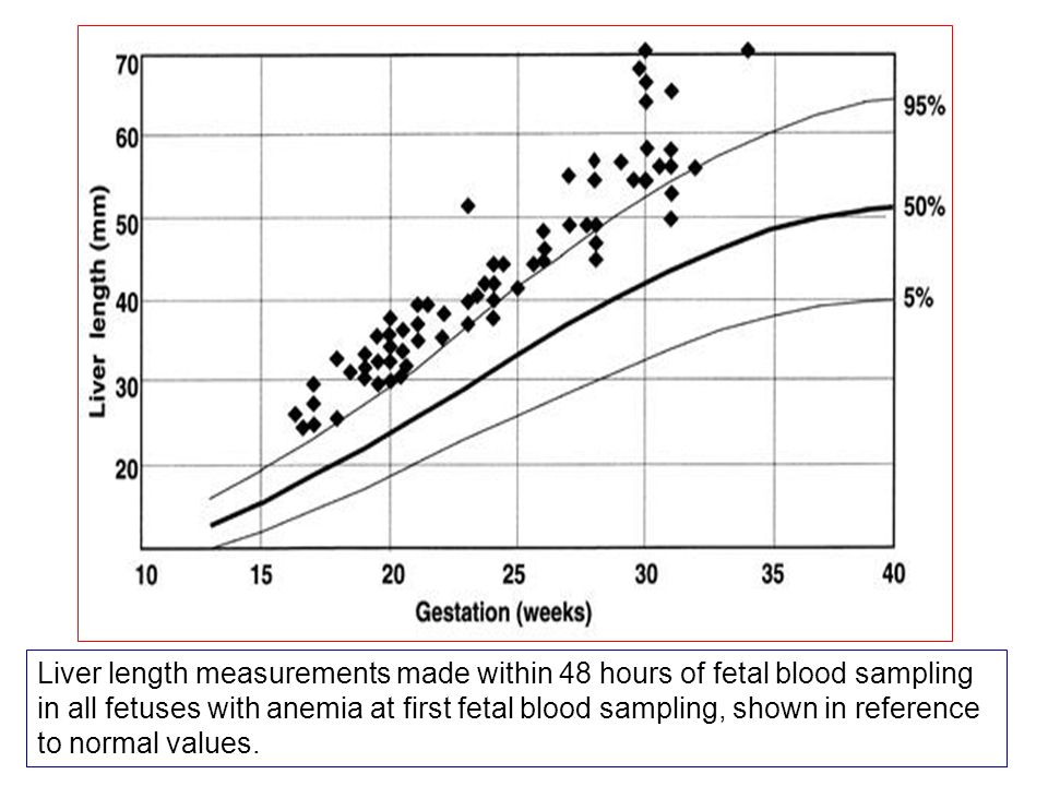 Liver length measurements made within 48 hours of fetal blood sampling in all fetuses with anemia at first fetal blood sampling, shown in reference to normal values.