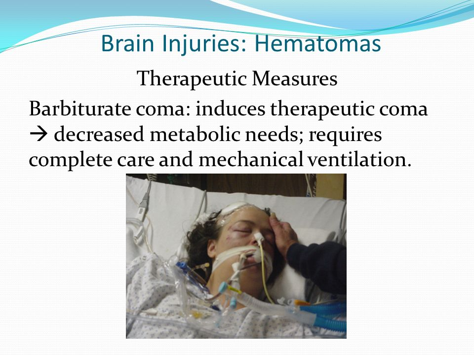 Brain Injuries: Hematomas