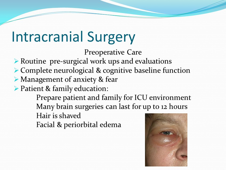 Intracranial Surgery Preoperative Care