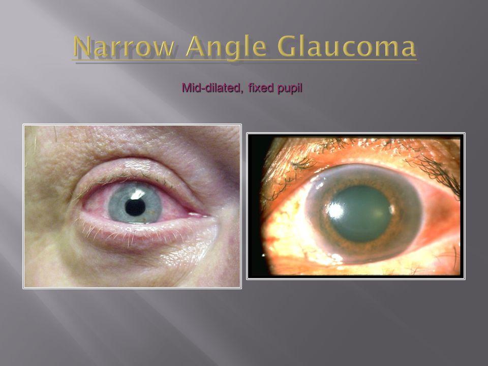 Narrow Angle Glaucoma Mid-dilated, fixed pupil