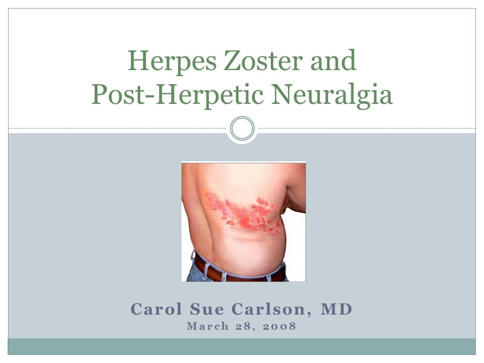 Herpes Zoster and Post-Herpetic Neuralgia