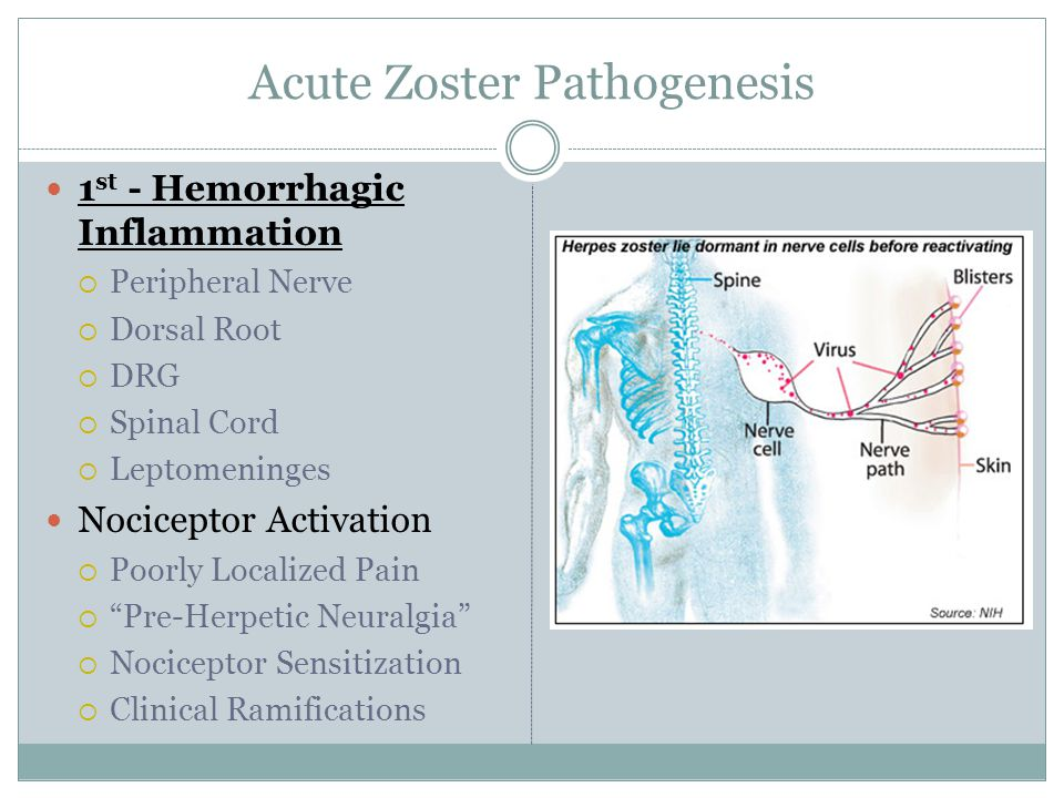 Acute Zoster Pathogenesis