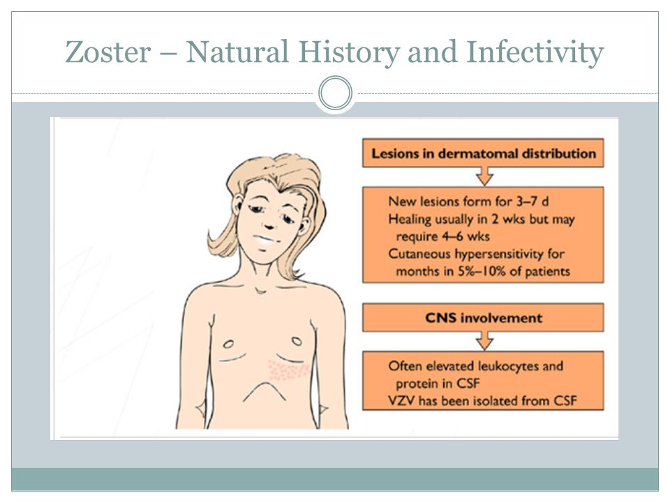 Zoster – Natural History and Infectivity