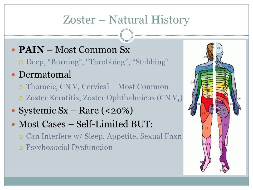 Zoster – Natural History