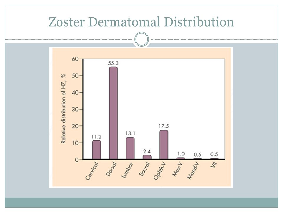 Zoster Dermatomal Distribution