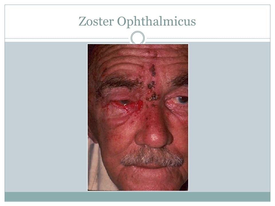 Zoster Ophthalmicus