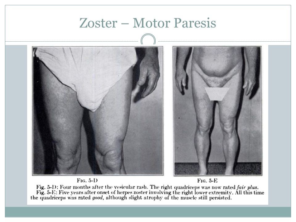Zoster – Motor Paresis