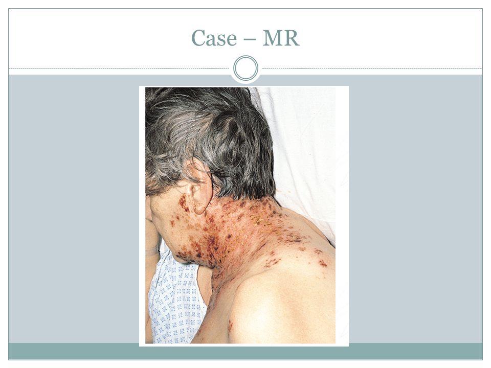 Case – MR