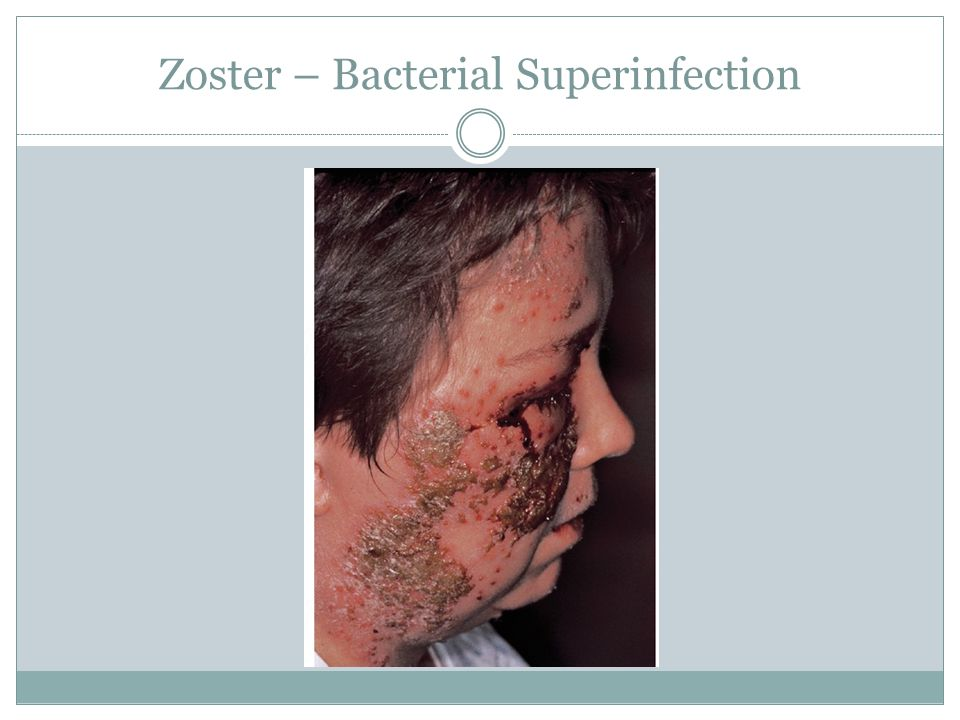 Zoster – Bacterial Superinfection