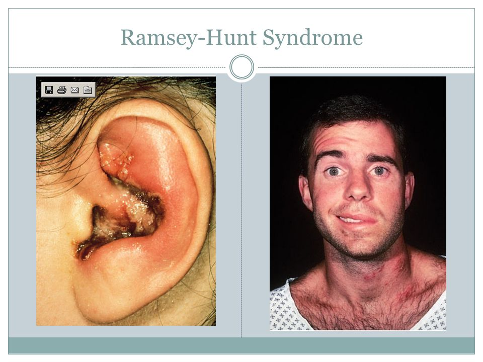 Ramsey-Hunt Syndrome