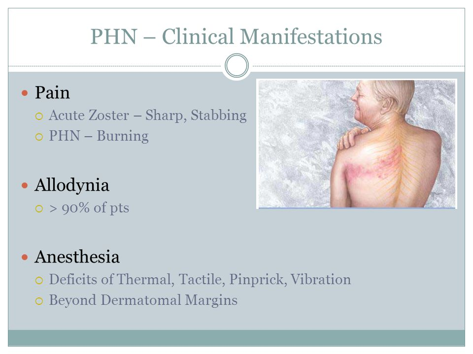 PHN – Clinical Manifestations