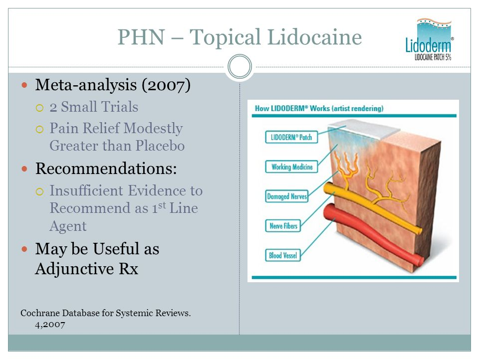 PHN – Topical Lidocaine