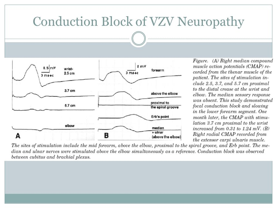 Conduction Block of VZV Neuropathy