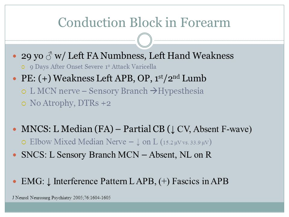 Conduction Block in Forearm
