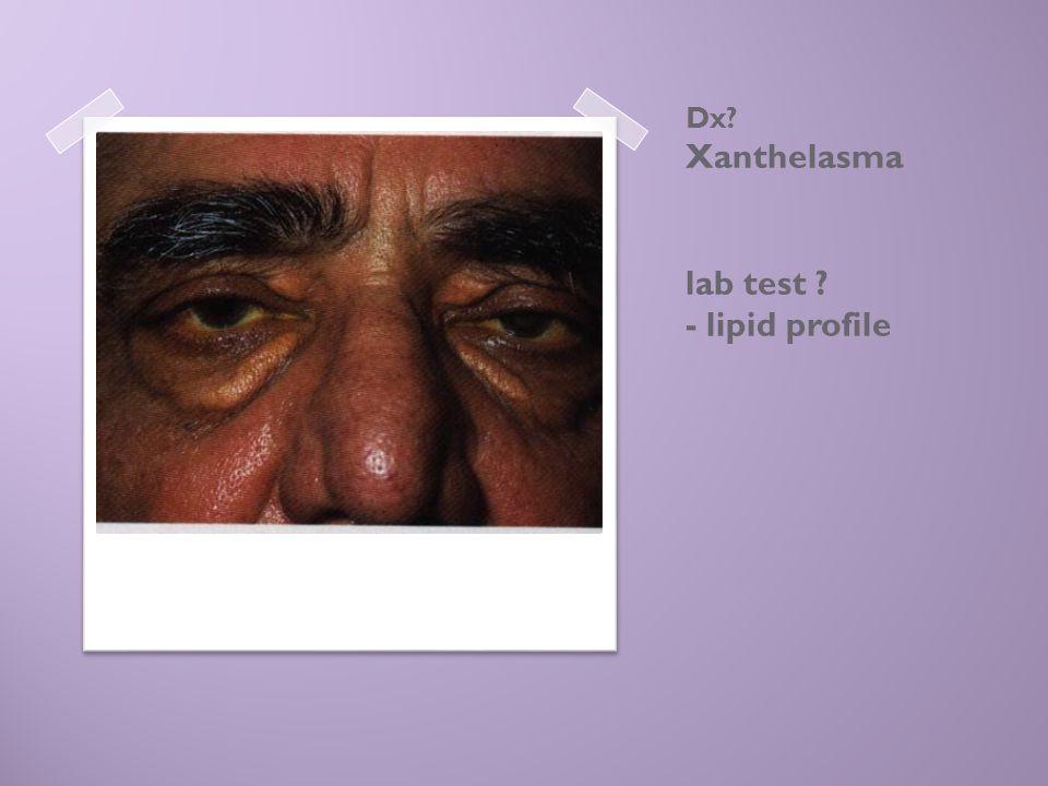 Dx Xanthelasma lab test - lipid profile