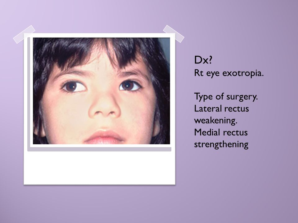 Dx. Rt eye exotropia. Type of surgery. Lateral rectus weakening