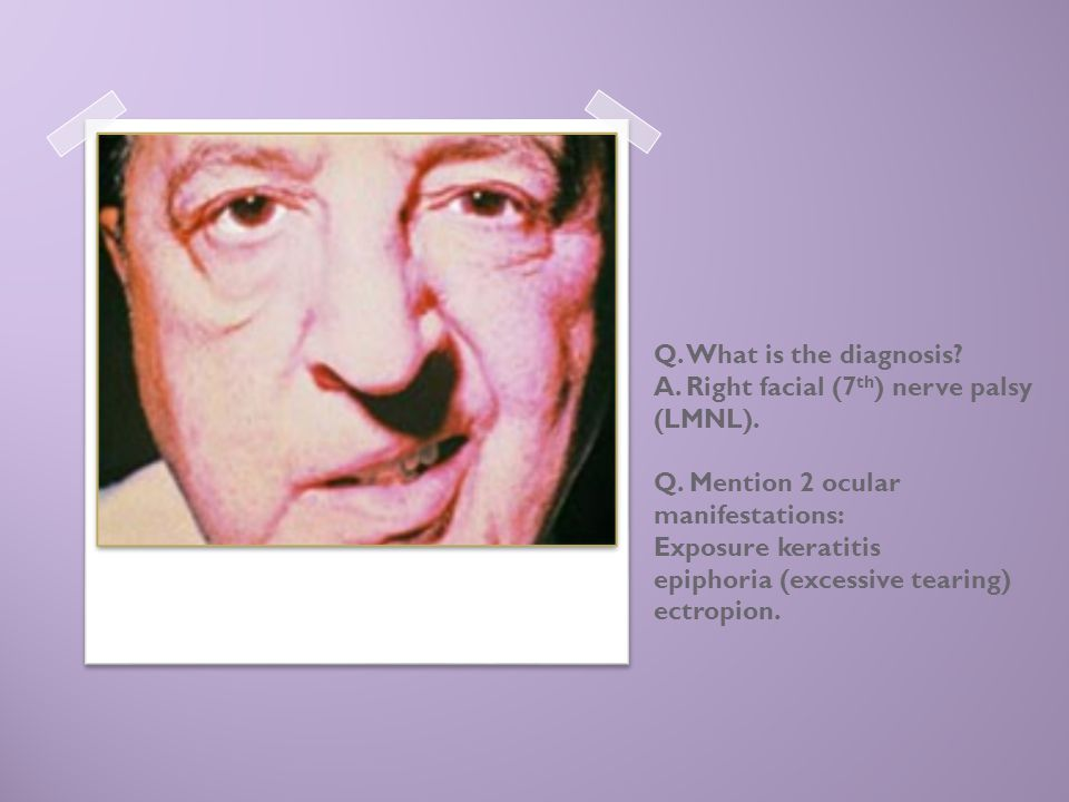 Q. What is the diagnosis. A. Right facial (7th) nerve palsy (LMNL). Q