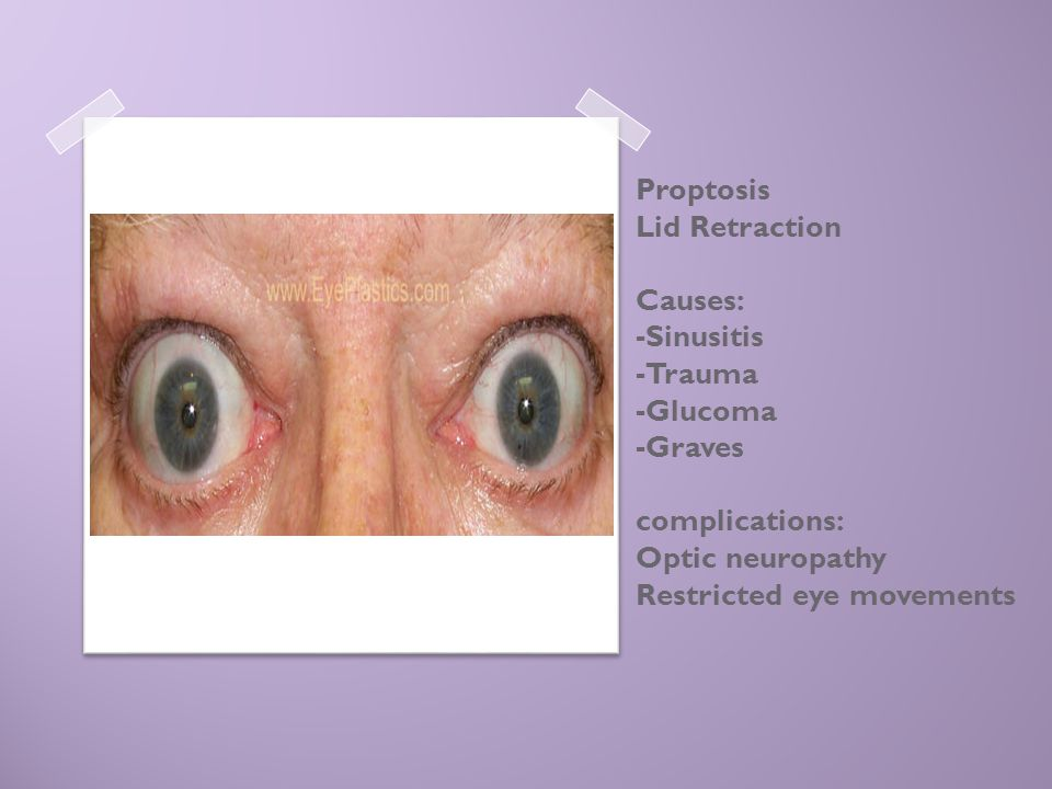 Proptosis Lid Retraction Causes: -Sinusitis -Trauma -Glucoma -Graves complications: Optic neuropathy Restricted eye movements