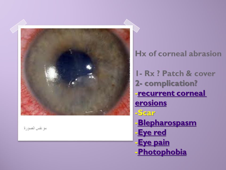 Hx of corneal abrasion 1- Rx. Patch & cover 2- complication