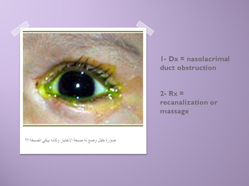 1- Dx = nasolacrimal duct obstruction 2- Rx = recanalization or massage