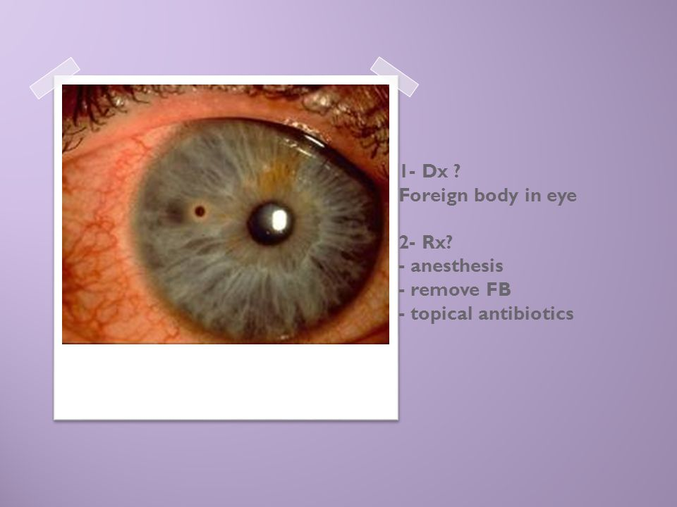 1- Dx. Foreign body in eye 2- Rx
