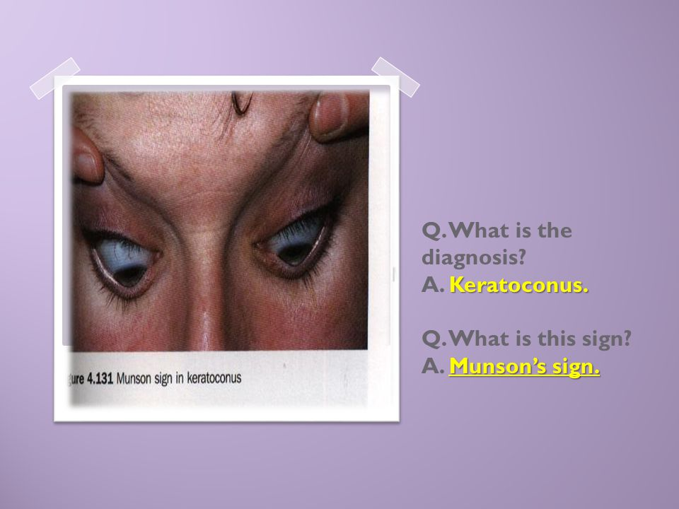 Q. What is the diagnosis. A. Keratoconus. Q. What is this sign. A