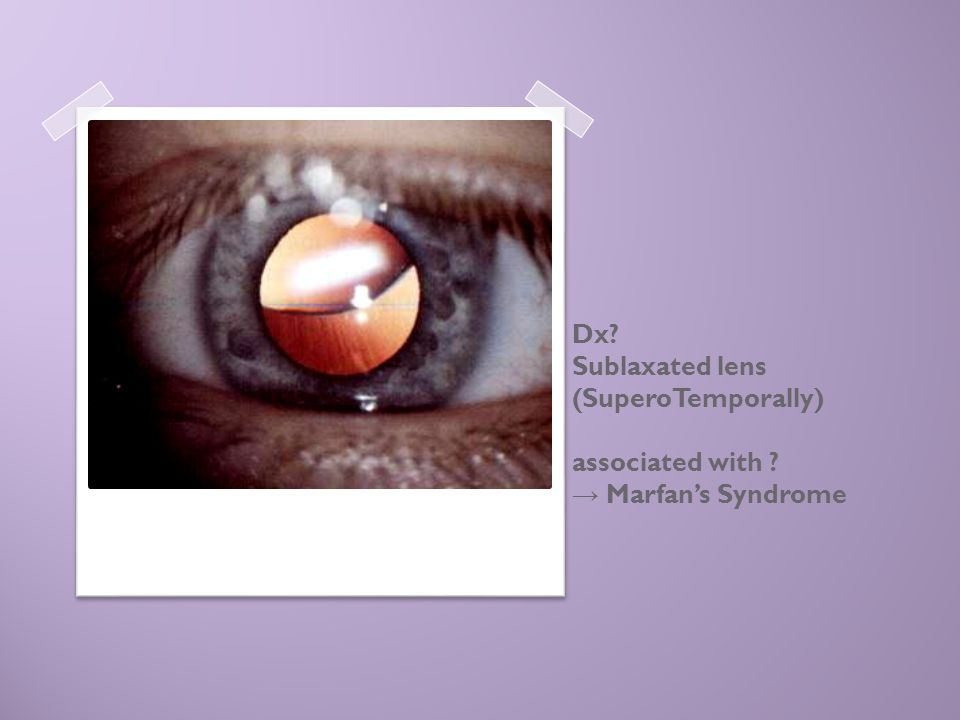 Dx. Sublaxated lens (SuperoTemporally) associated with
