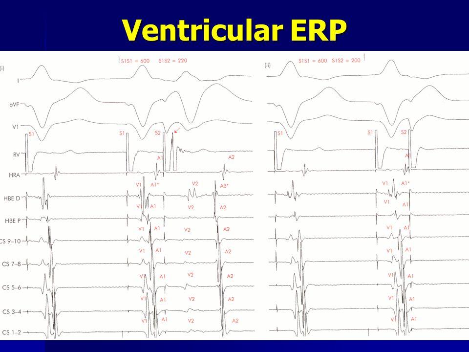 Ventricular ERP