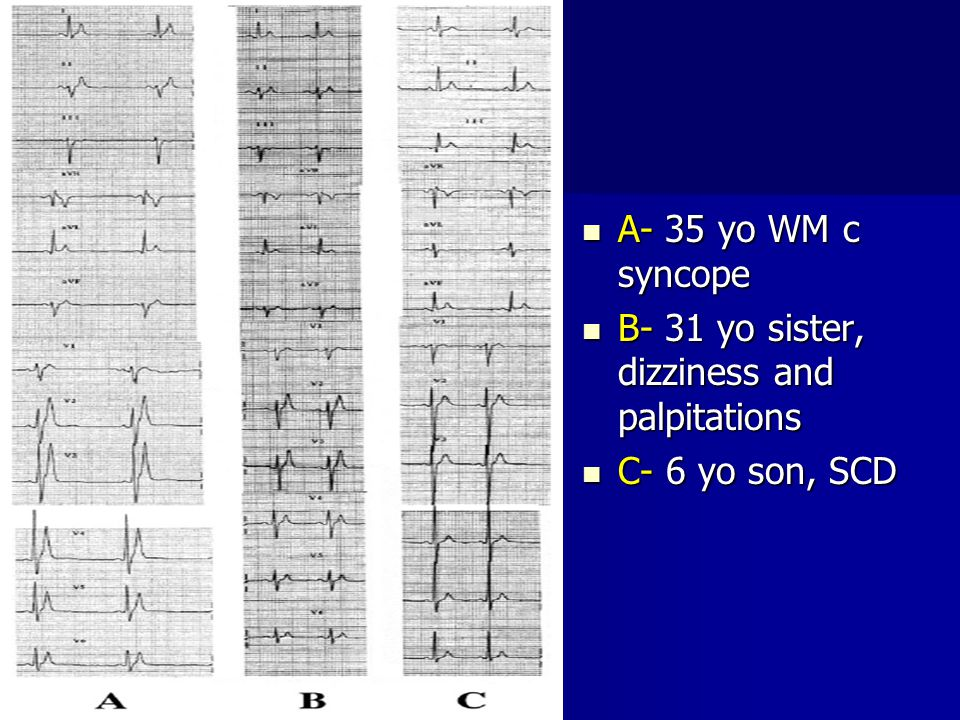 A- 35 yo WM c syncope B- 31 yo sister, dizziness and palpitations C- 6 yo son, SCD